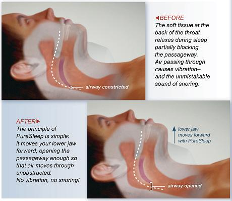 What's going on when you snore